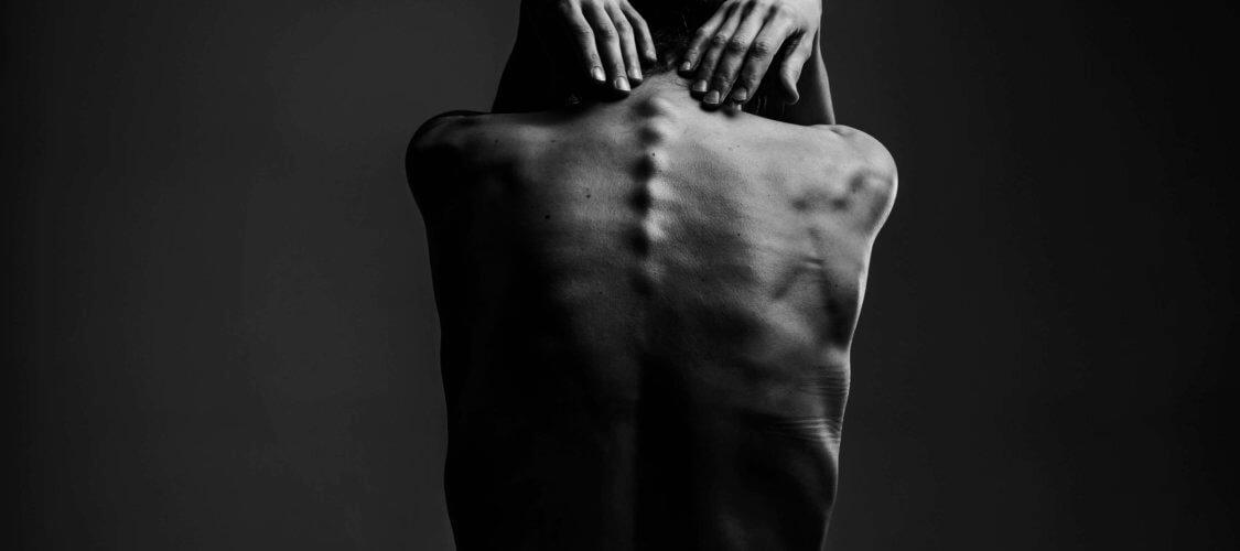 image of back pain